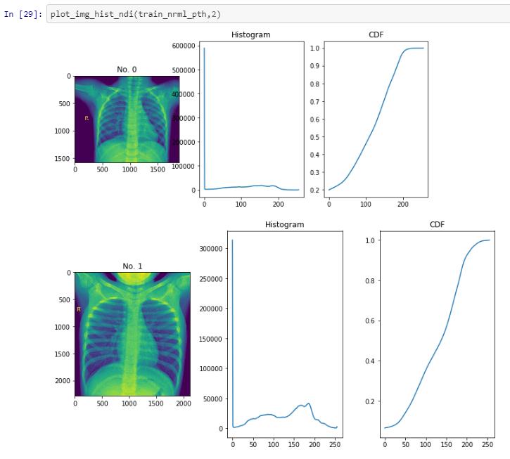 COVID-19 Diagnostics with CoronaHack Dataset (97% Accuracy)