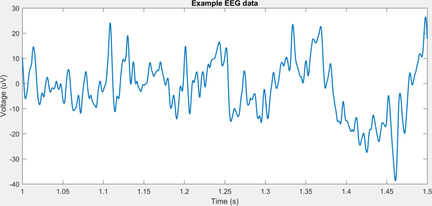 GitHub - EIT-team/Stroke_EIT_Dataset: Processing and directory