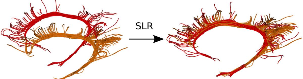 SLR Neuroimage 2015
