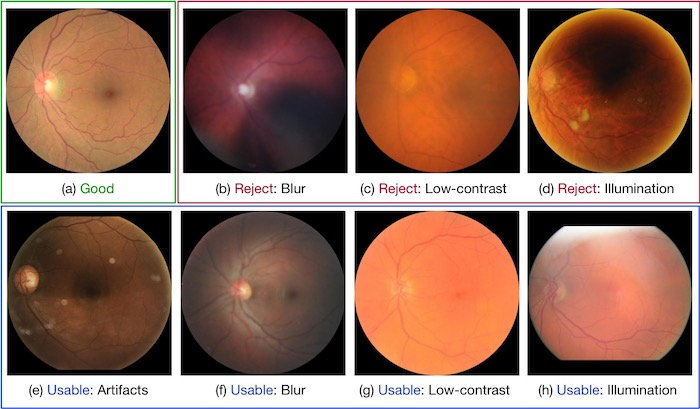 Examples of different retinal image quality grades.