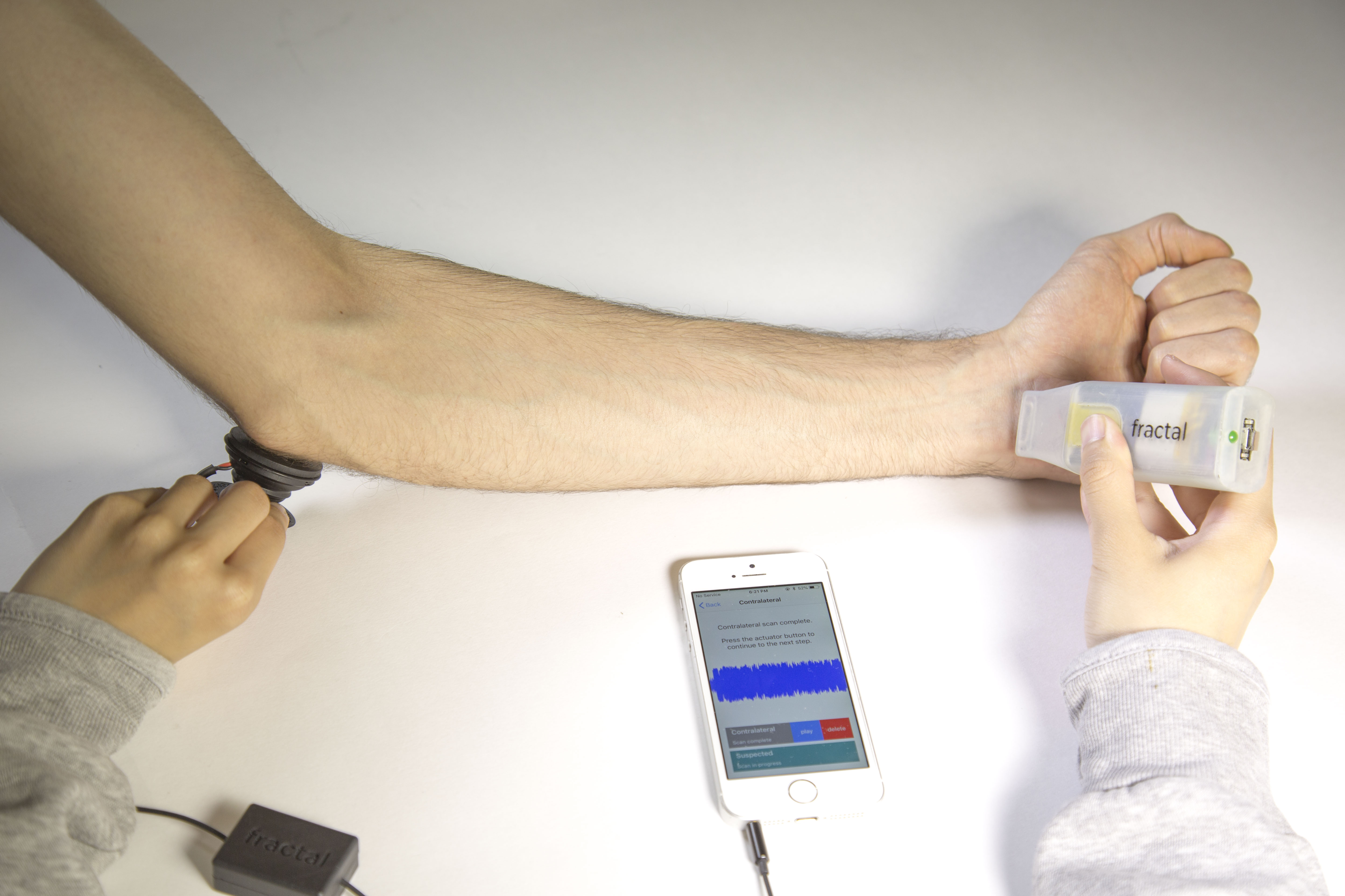 Photo of Fractal prototype, measuring vibrations across a bone in the arm.