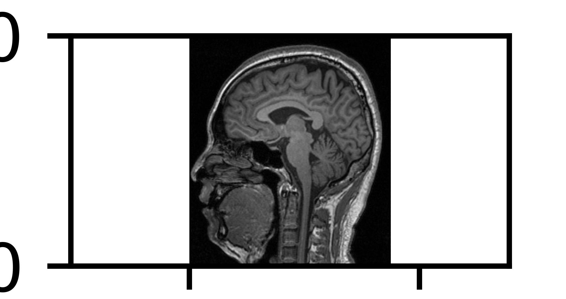MRI - me