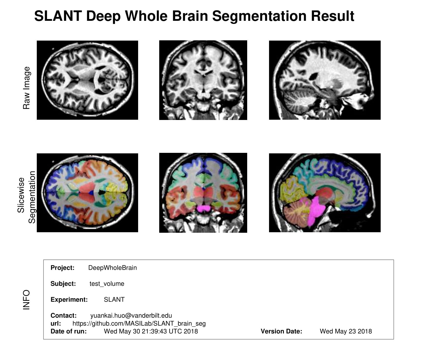 Papers With Code : 3D Whole Brain Segmentation using