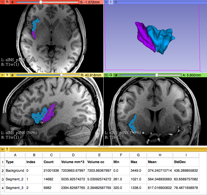 Parcellation of anterior an posterior Insula and volumetric measures