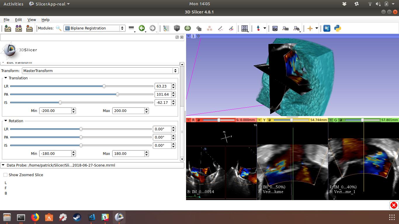 BiPlaneRegistration Module screenshot