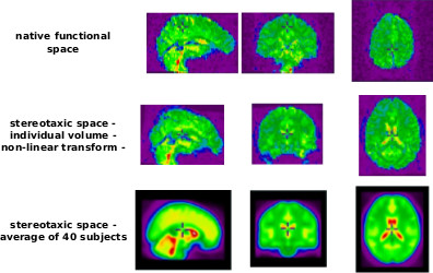 The fMRI preprocessing workflow