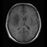 T1w-precontrast-scan