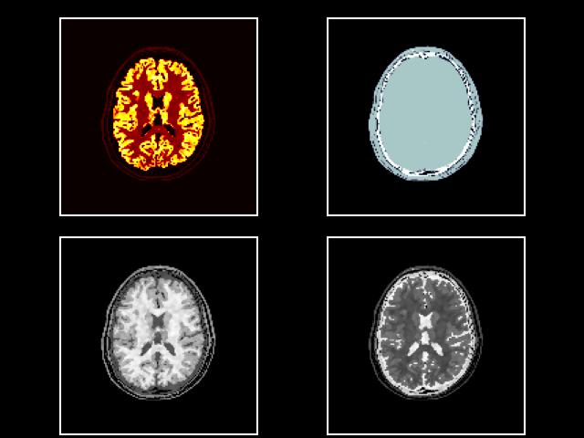 brainweb-img