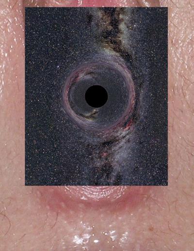 Rugae vaginales with black hole