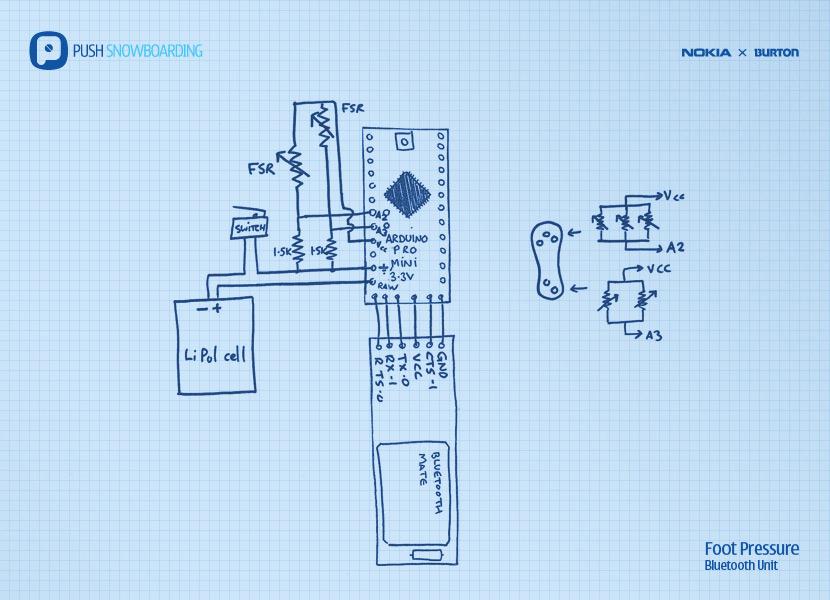 Foot Pressure Sensor