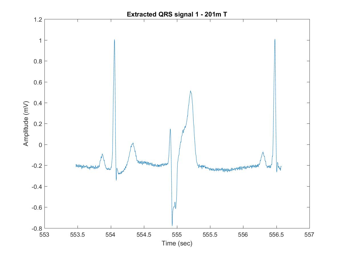 GitHub - davikawasaki/arrhythmia-ecg-analysis-pds