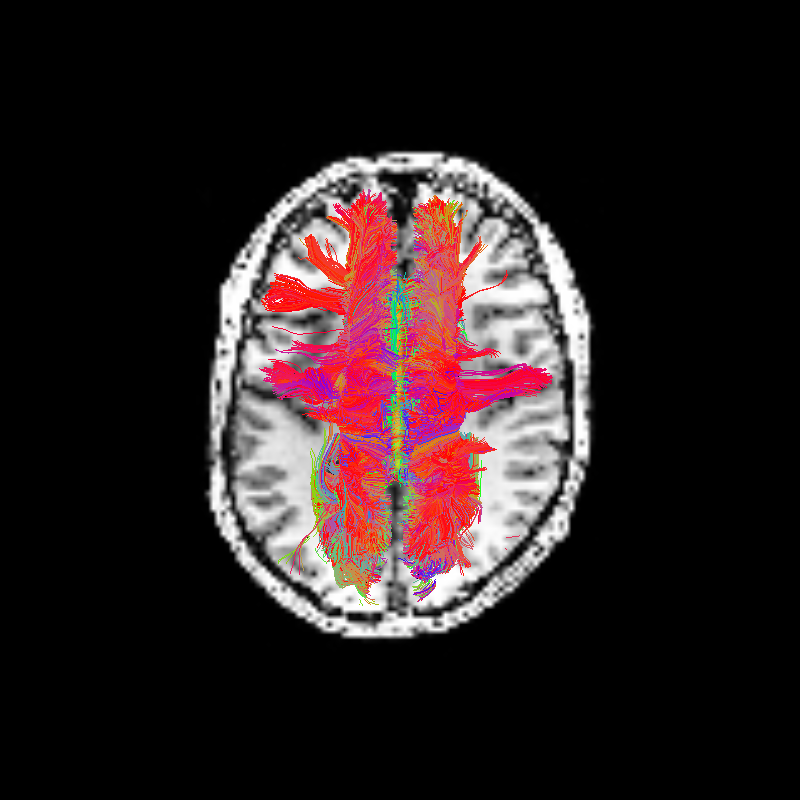 ../../_images/corpuscallosum_axial.png
