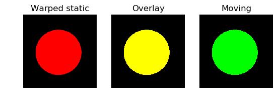 ../../_images/inverse_warp_result.png