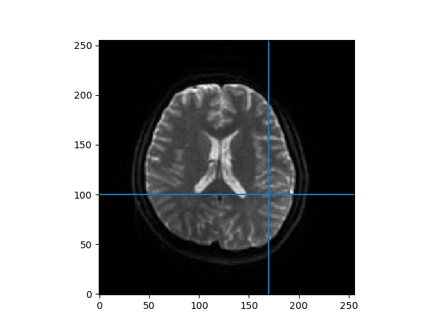 ../../_images/ivim_data_slice.png
