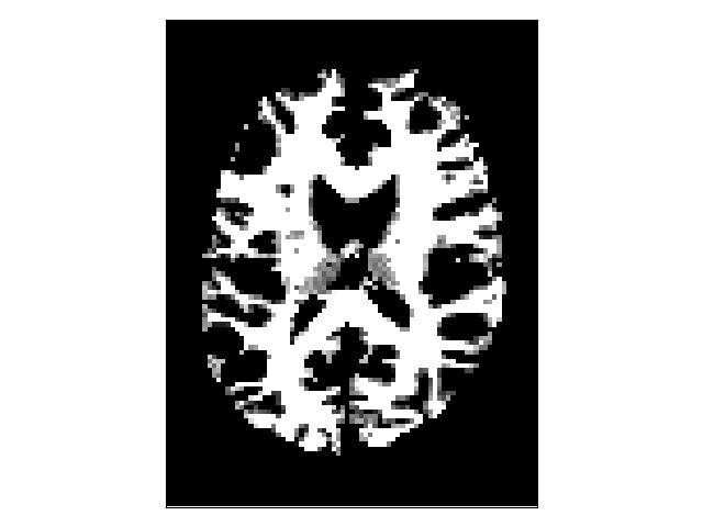 ../../_images/white_matter_mask.png