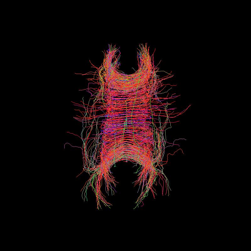 ../../_images/tractogram_probabilistic_dg_sh_pfm.png