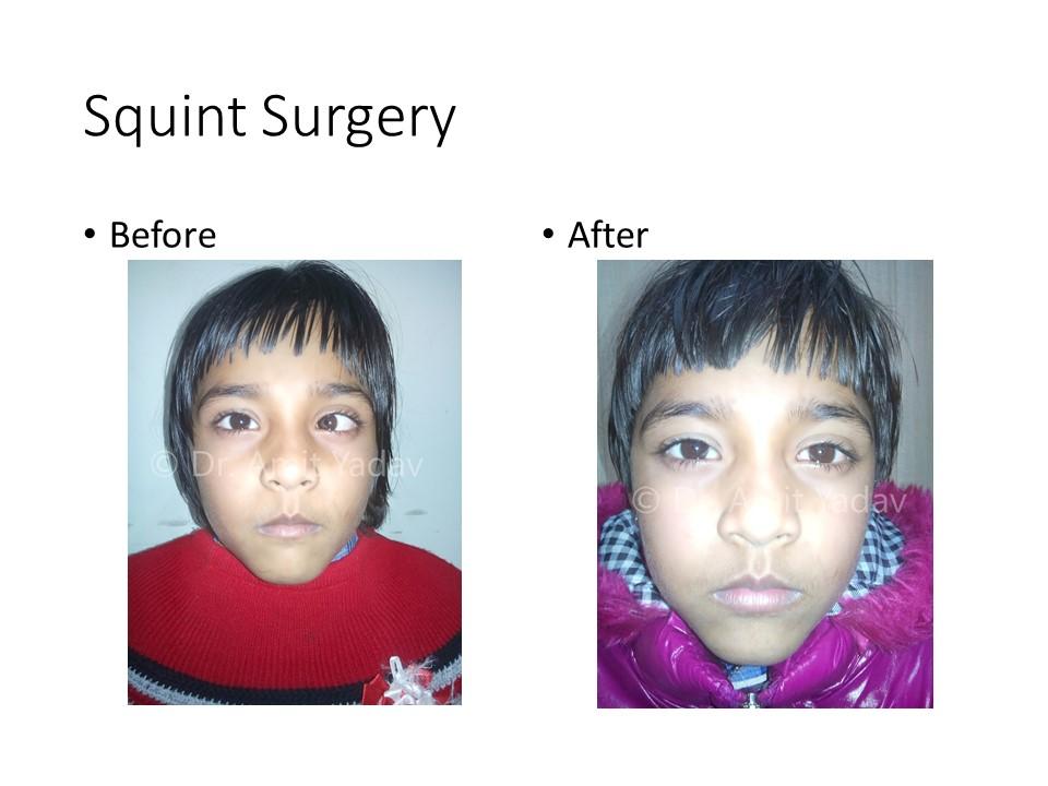 Dr Amit Yadav Pediatric Ophthalmologist Eye Specialist In Lucknow