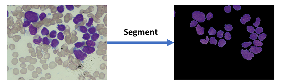 Fig 1. An example image for overlapping cell segmentation.