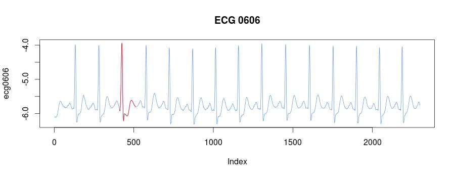 ECG0606 clusters