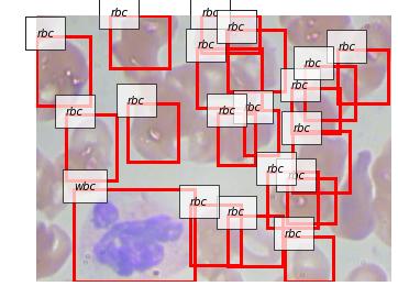 血液の顕微鏡画像からRBC, WBC, Plateletを検出している例