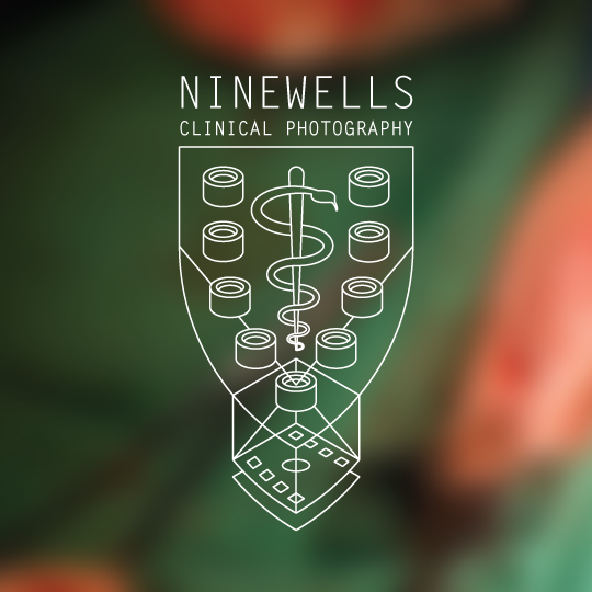 Photography for Ninewells Hospital [CW: Surgery]
