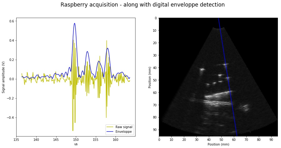 1 5 RPi ultrasound imaging platform · Hacking ultrasound with a DIY