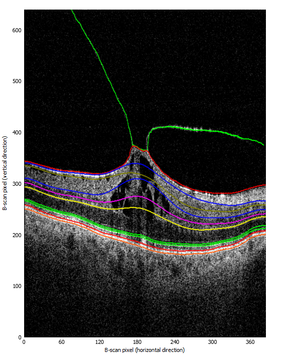 Segmented OCT retina B-Scan