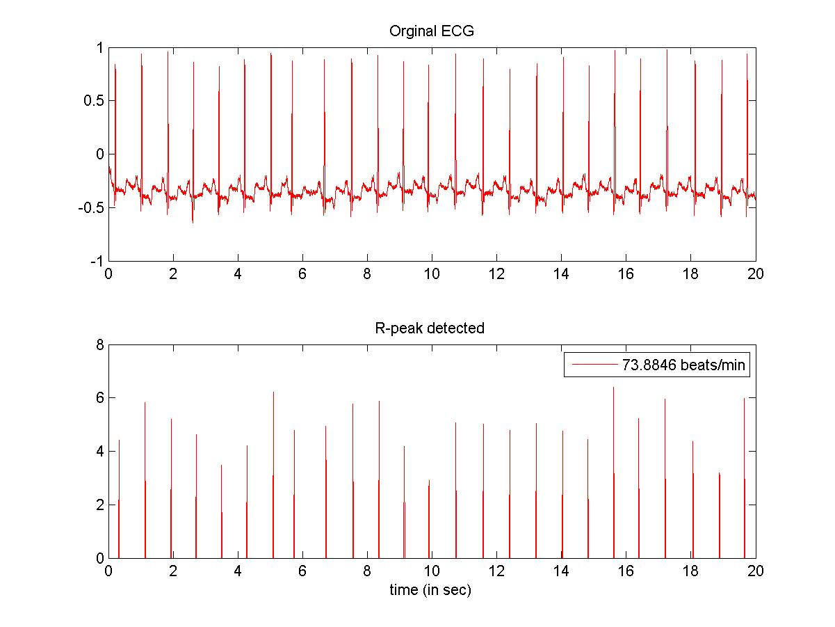 ECG-wavelet-feature-extraction/readme md at master · mgeekmatlab/ECG