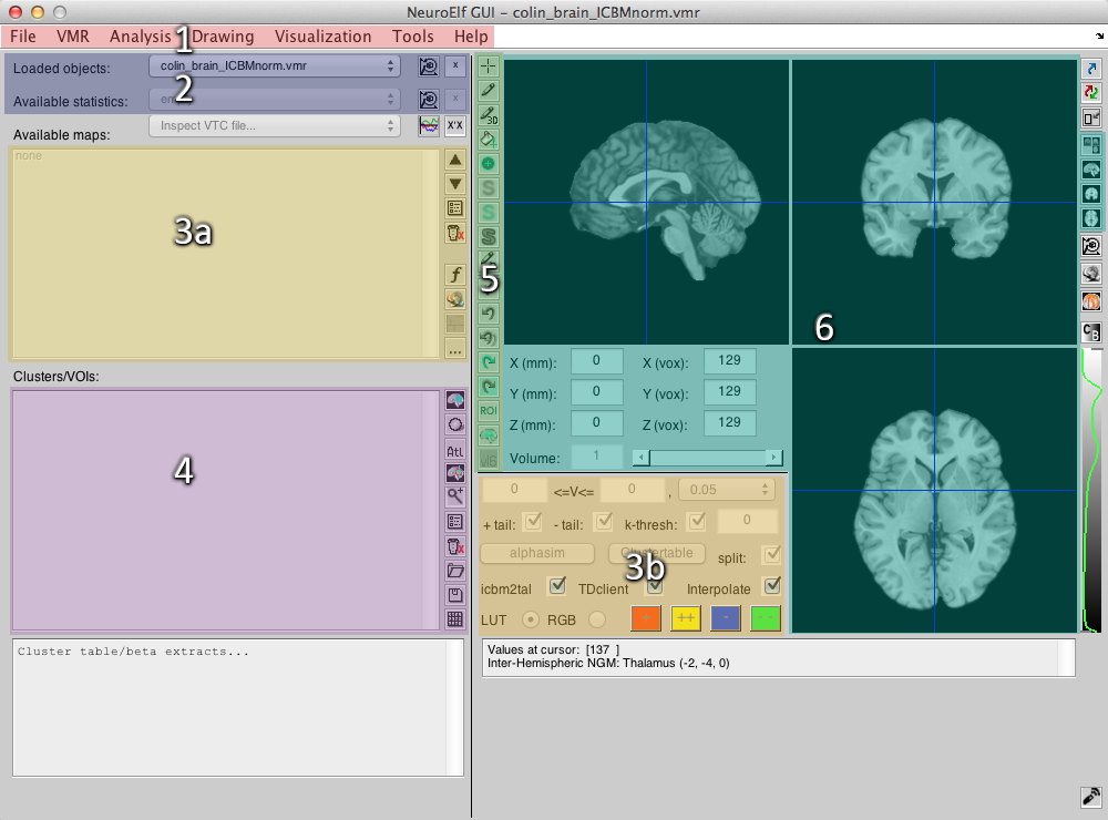 NeuroElf GUI with highlighted areas