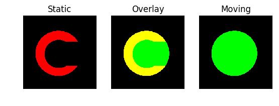 DIPY : Docs 0 11 0 - Symmetric Diffeomorphic Registration in 2D