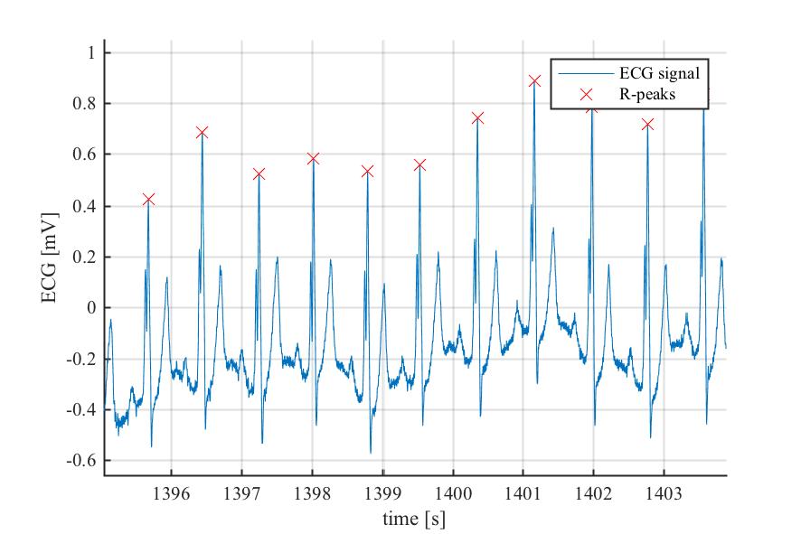 Example Peak Detection