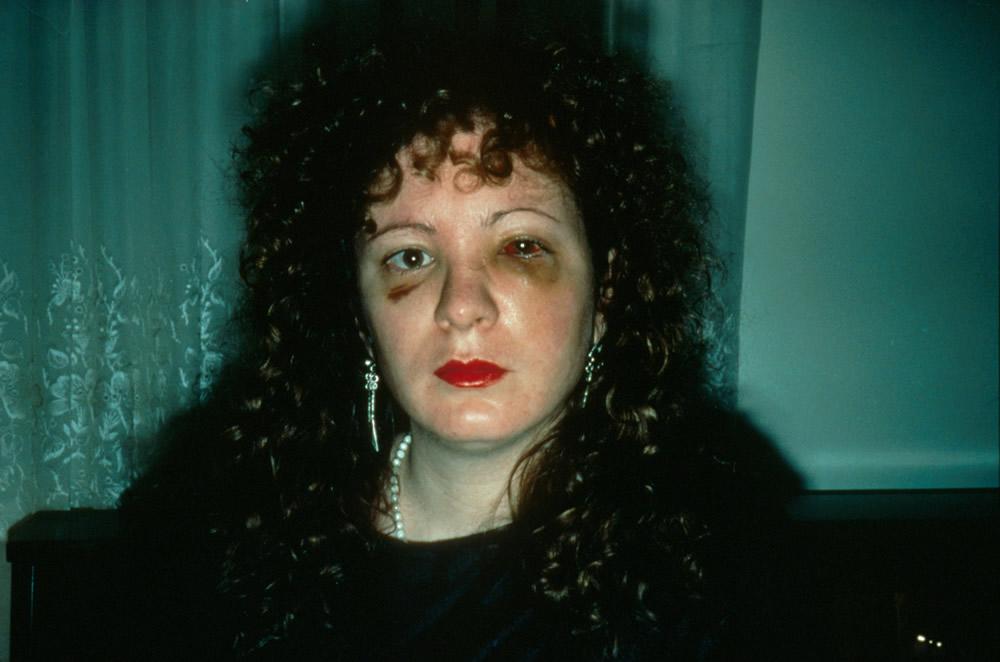 Recordações em registro - Nan One Month After Being Battered, 1984 (Foto: Nan Goldin)