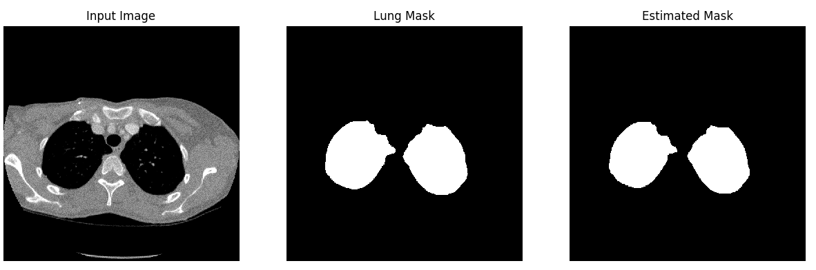 Lung Segmentation result 2