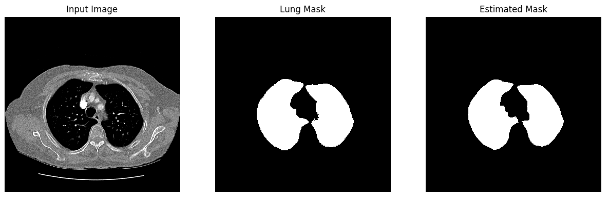 Lung Segmentation result 3
