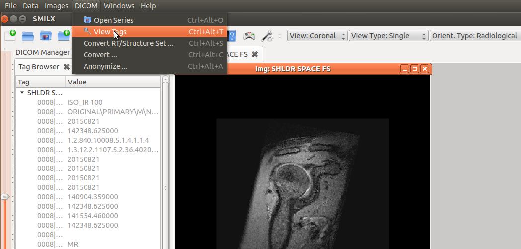 NITRC: Simple Medical Imaging Library Interface (SMILI): File