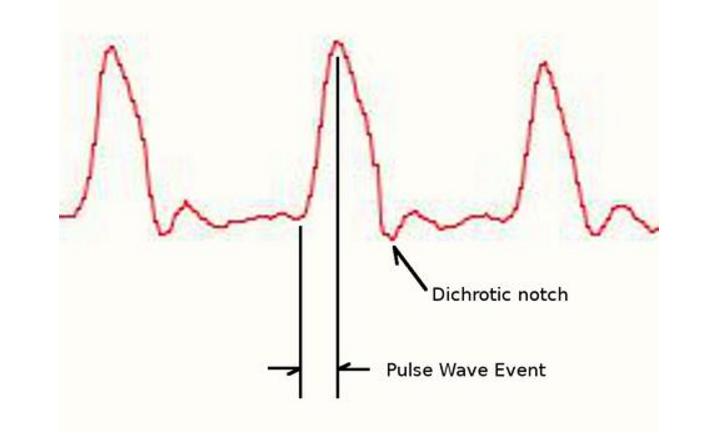 图6 信号波形变化