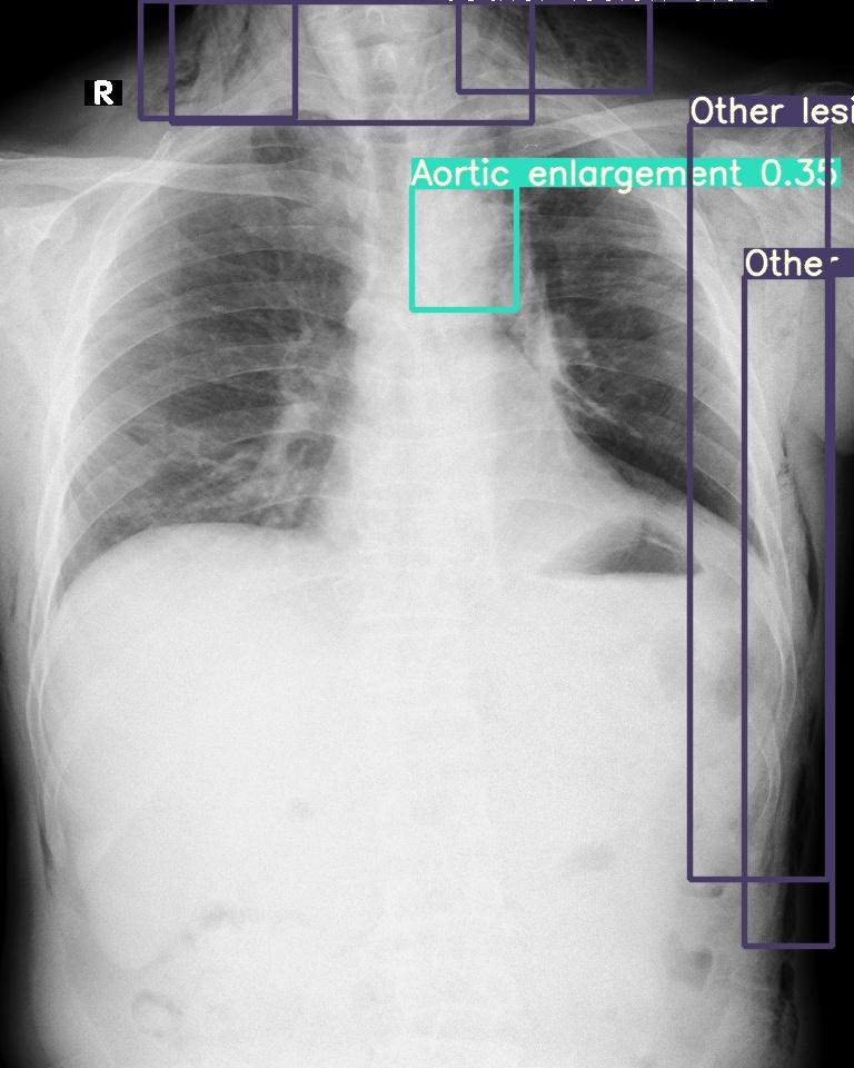 yolo v5 x-ray