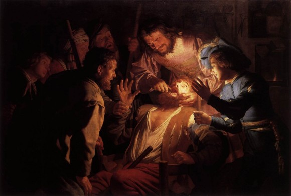 Honthorst,_Gerard_van_-_The_Dentist_-_1622