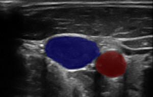 Ultrasound image segmentation using neural netwoks.